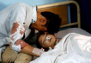 Afganistan patlama yaralı